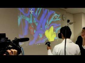 Holoeyes VR